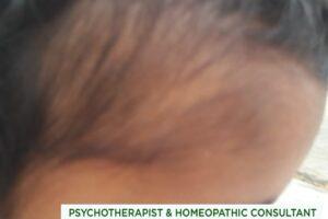 Alopecia بالچر ۔ بال چر ۔ ایلوپیشیا ارییاٹا ۔۔۔۔۔ کامیاب ہومیوپیتھک علاج ۔ حسین قیصرانی