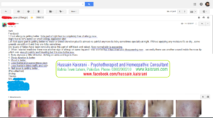 Homeopathic Treatment of Skin eruption, Allergy, Itching, Dryness, Nail Fungus – A feedback from an Online Client