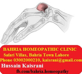 Homeopathic Treatment of Ganglion Cyst on Wrist – A Case of Causticum